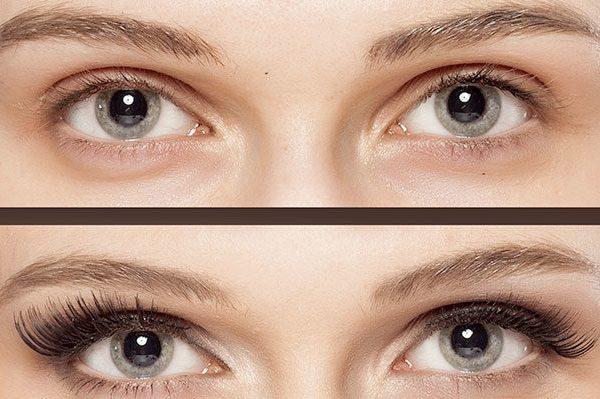 การสูญเสียขนตาโดยไม่คาดคิด: ส่วนขยายสามารถช่วยได้!